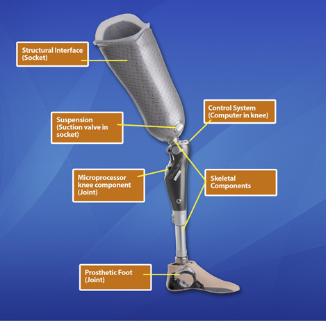 Prosthetic Limb Design Eastern Prosthetic Clinic